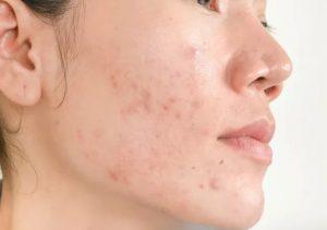 [Review] Gel Rửa Mặt Eucerin ProAcne Solution Cleansing Gel Dành Cho Da Mụn Hiệu Quả Trên Từng Nốt Mụn